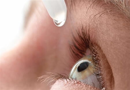 View of an eye-drop about to dropped from a pipette into an open human eye.